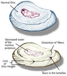 Doença degenerativa do disco (DDD)