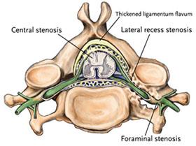 Estenose foraminal