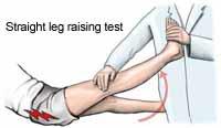Straight Leg Test