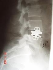 tratamento_cirurgico07